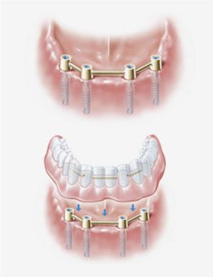 protezy na implantach szczecin