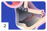 Regeneracja kości etap II