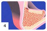 Regeneracja kości etap IV