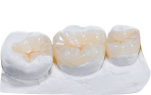 Rekonstrukcja zniszczonego zęba