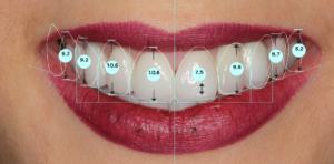 Dzięki cyfrowej technologii DSD - Digital Smile Design - możliwe są dokładne pomiary symetrii oraz zaprojektowanie nowego harmonijnego uśmiechu
