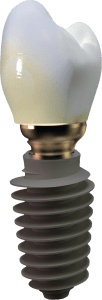 Implant zęba z koroną Szczecin AnyRidge Megagen