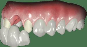 Przy braku jednego zęba jedną z możliwości jego zastąpienia jest wykonanie mostu zacementowanego na oszlifowanych zębach sąsiednich