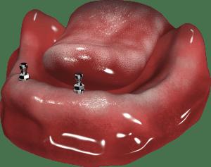 2 implanty + zatrzaski w żuchwie