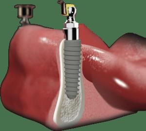 2 implanty w żuchwie