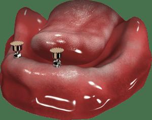 zatrzaski na implantach w żuchwie