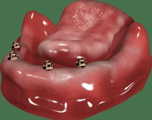 implanty w żuchwie