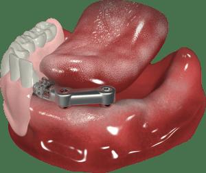 proteza zębów na belce doldera