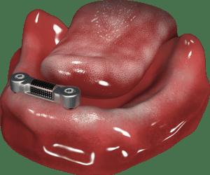 belka Doldera w żuchwie