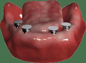 czapeczki Locator - implanty w żuchwie