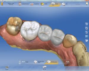 koronki zębów szczecin zaprojektowane w systemie Cerec idealnie pasują do zgryzu