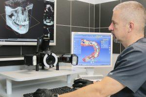 Cyfrowe techniki planowania w implantologii zwiększają precyzję zabiegów. Implanty Szczecin