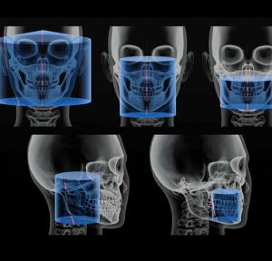 tomografia zębowa stożkowa CBCT - to podstawowe narzędzie planowania leczenia przy pomocy implantów. Implanty - Stomatologia na Podzamczu - Szczecin
