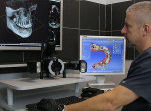 Diagnostyka homograficzna CBCT umożliwia precyzyjną nawigację podczas wprowadzania implantów