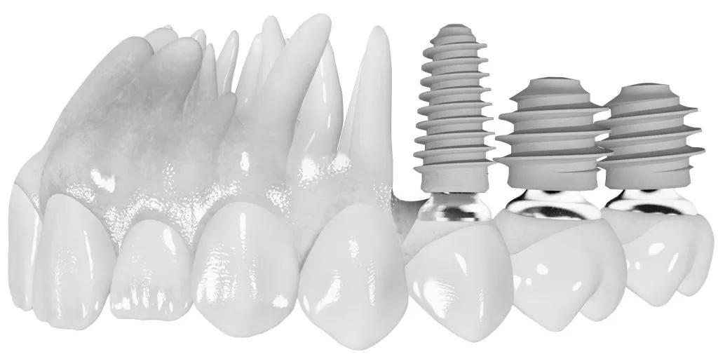 Porównanie: implant krótki i długi. Jak wyglądają