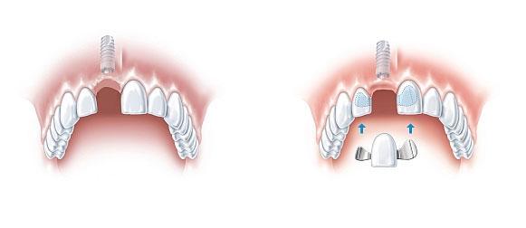 odbudowa zęba szczecin