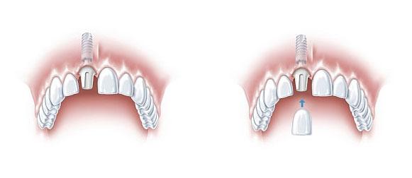 odbudowa zęba szczecin  - implant zęba