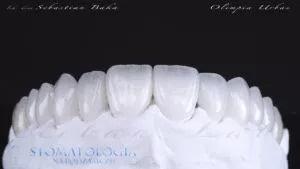 Licówki ceramiczne pozwalają na stworzenie zupełnie nowych kształtów zębów w pięknym, jednym kolorze