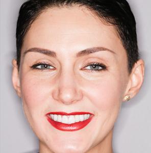 Piękny uśmiech dzięki implantom i licówkom oraz koronom ceramicznym