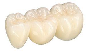 mostek zębowy jako uzupełnienie brakującego zęba - protetyk szczecin