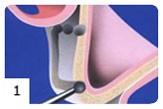 Regeneracja kości etap I