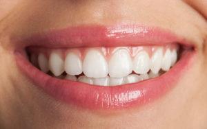 Piaskowanie zębów umożliwia usunięcie z nich nieestetycznego nalotu oraz złogów kamienia za pomocą strumienia piasku o specjalnie dobranych kształtach ziarenek